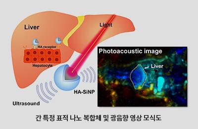 창의IT 김철홍-신소재 한세광 교수 공동연구팀, 빛과 소리(광음향)로 간 질환 찾는다